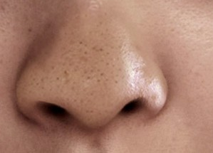 黑頭粉刺導出液A